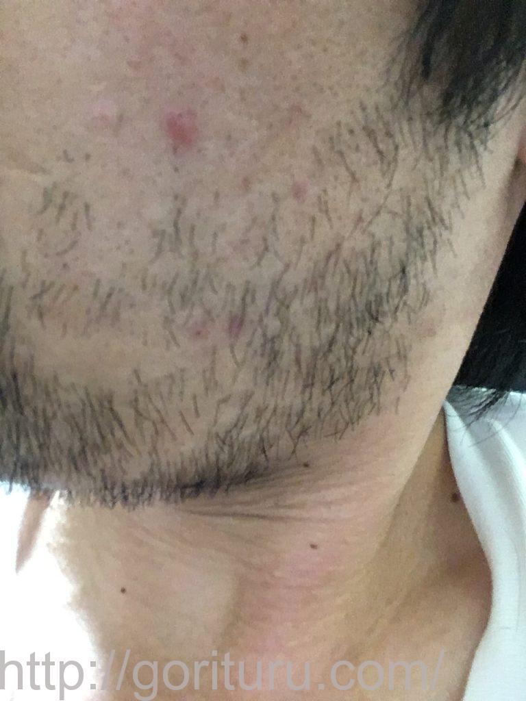 【髭脱毛2回目】レーザー照射後-10日後-左ほほ・もみあげ