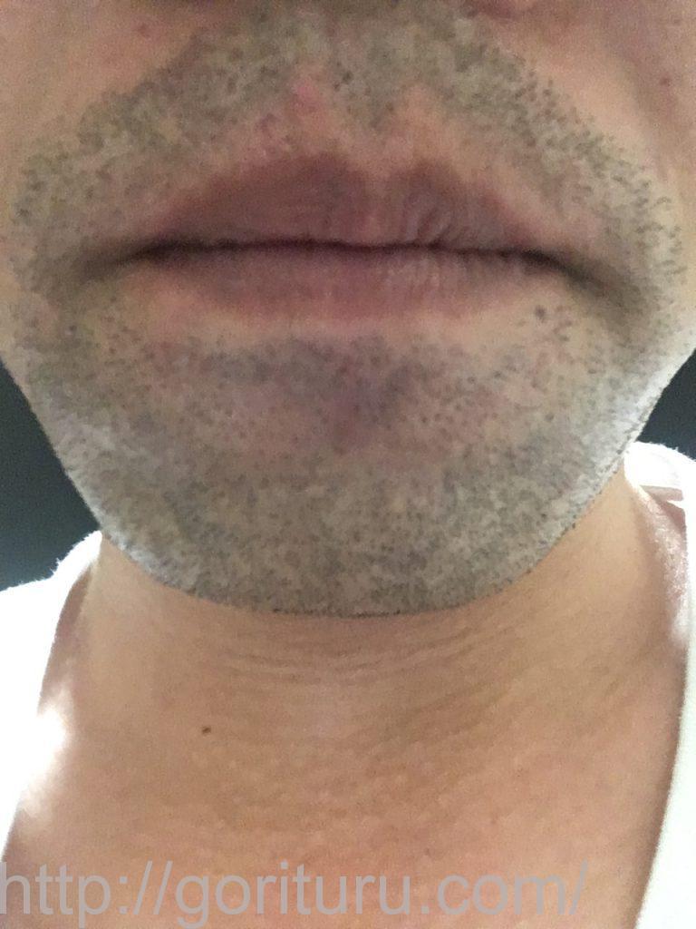 【髭脱毛2回目】レーザー照射後-1日後-正面