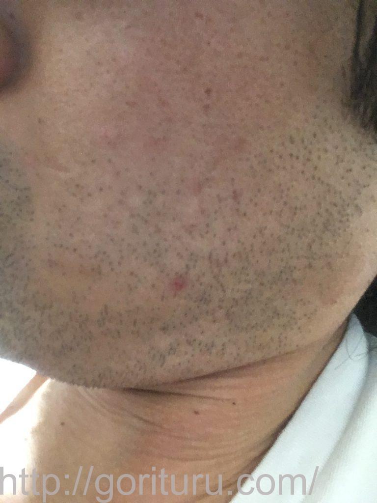 【髭脱毛2回目】レーザー照射後-1日後-左ほほ・もみあげ