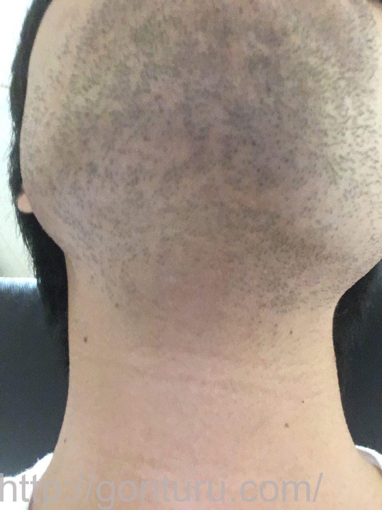 【髭脱毛2回目】レーザー照射後-1日後-首・顎下