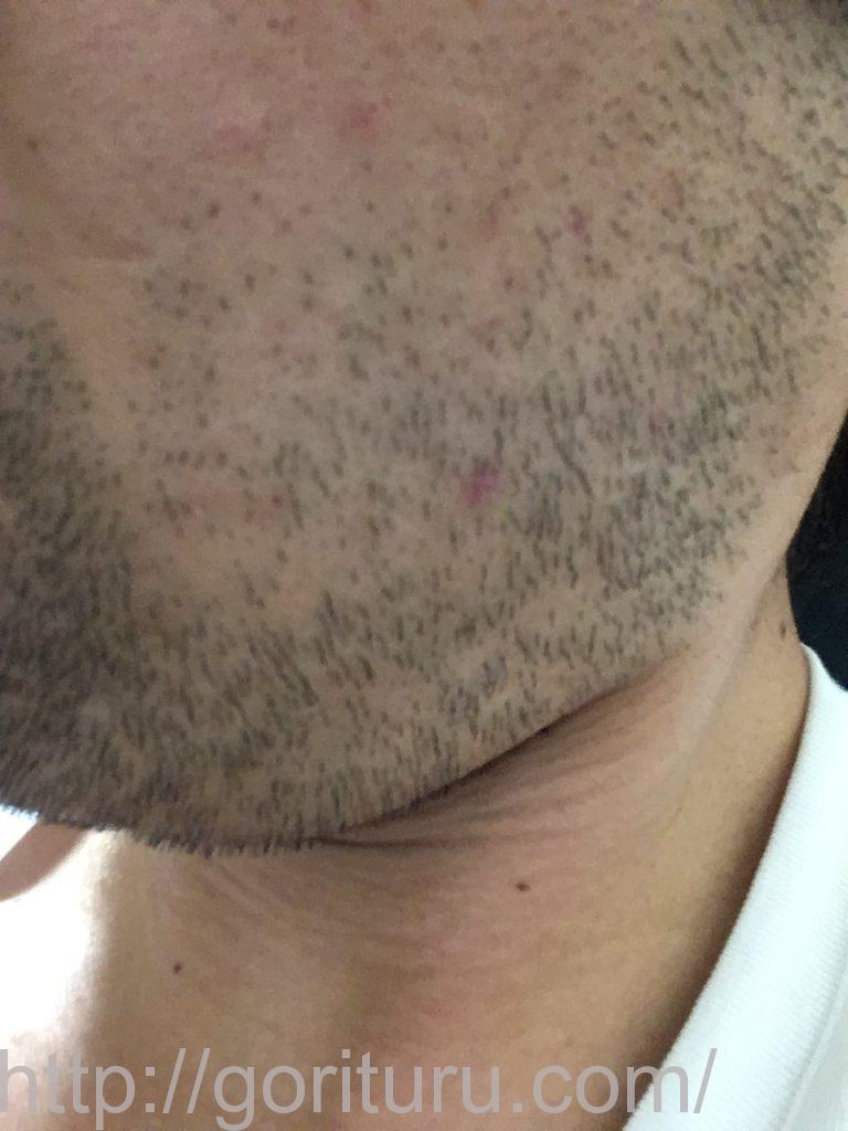 【髭脱毛2回目】レーザー照射後-3日後-左ほほ・もみあげ