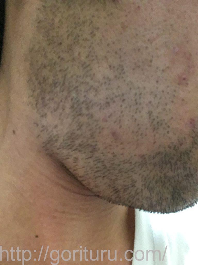 【髭脱毛2回目】レーザー照射後-3日後-右ほほ・もみあげ