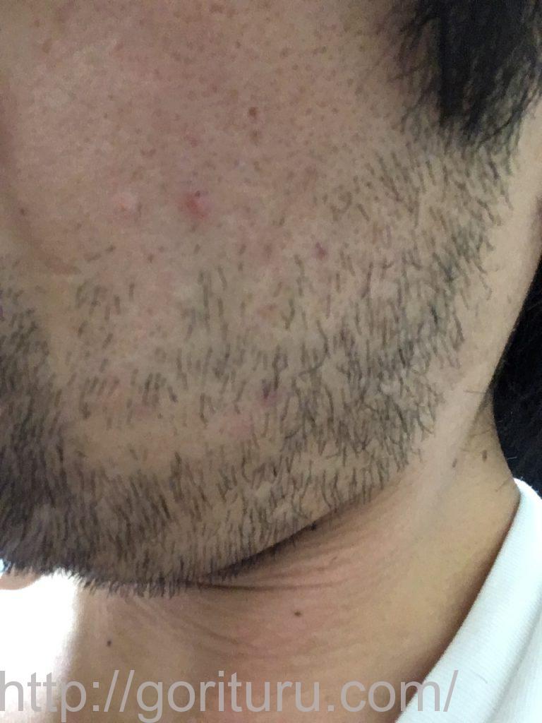 【髭脱毛2回目】レーザー照射後-7日後-左ほほ・もみあげ