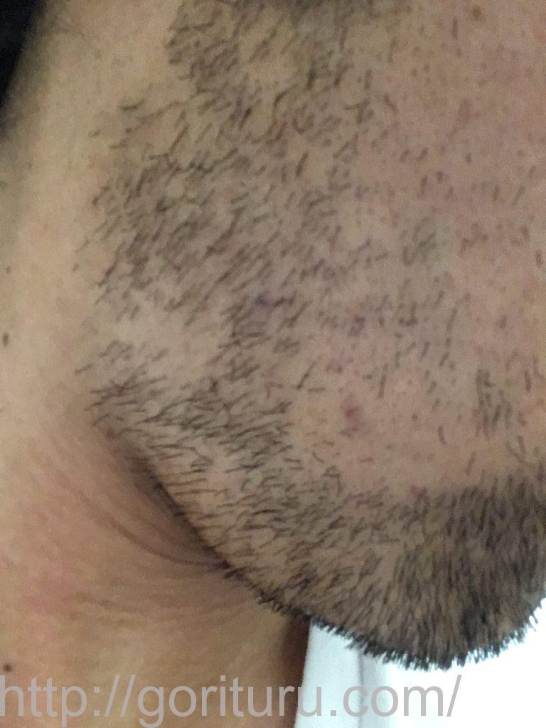 【髭脱毛2回目】レーザー照射後-7日後-右ほほ・もみあげ