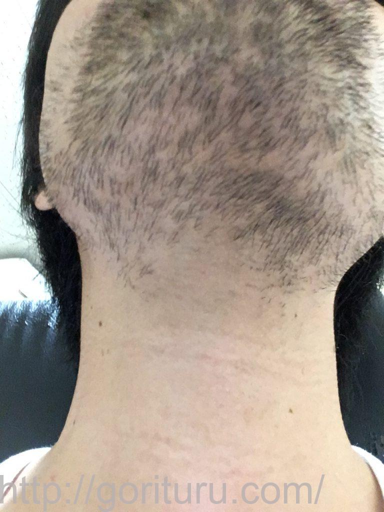 【髭脱毛2回目】レーザー照射後-7日後-首・顎下