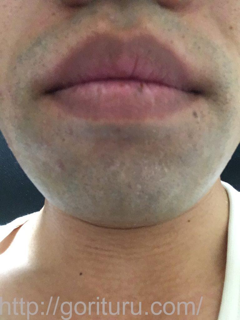 【髭脱毛2回目】レーザー照射前-髭剃り直後-正面