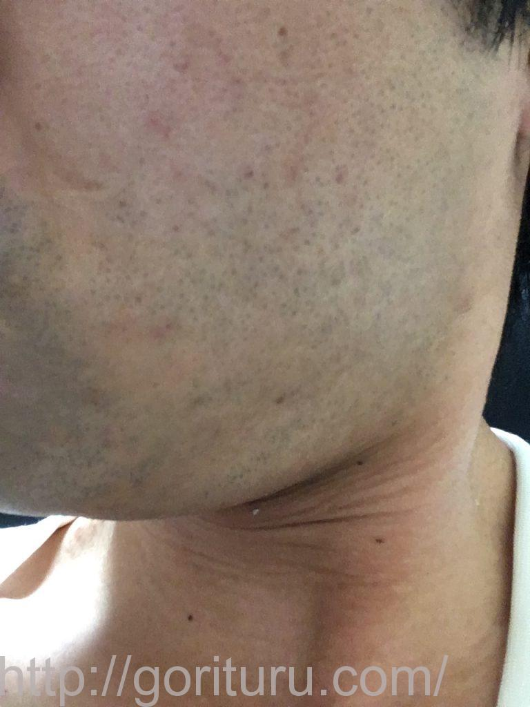【髭脱毛2回目】レーザー照射前-髭剃り直後-左頬・もみあげ