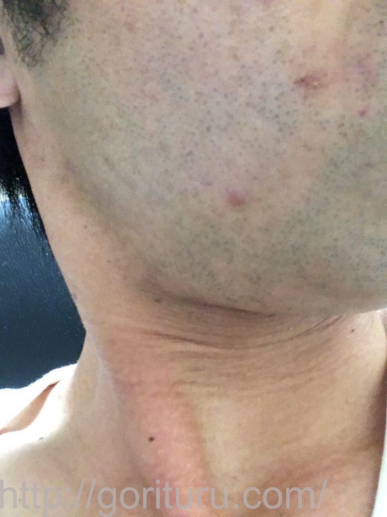 【髭脱毛2回目】レーザー照射前-髭剃り直後-右頬・もみあげ