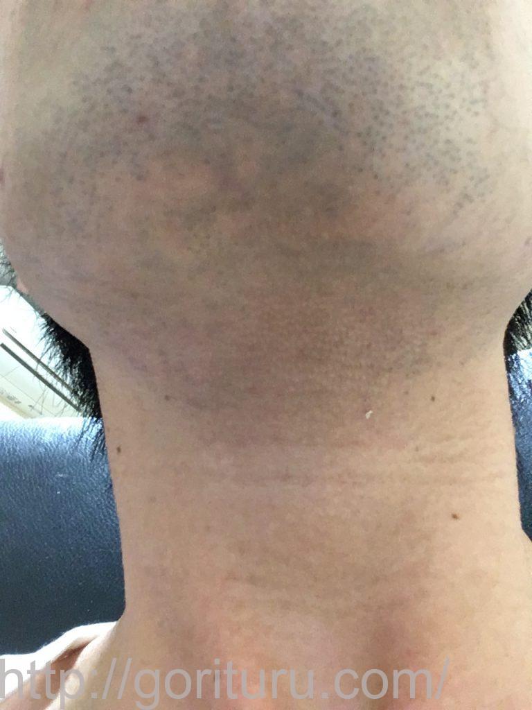 【髭脱毛2回目】レーザー照射前-髭剃り直後-首・顎下