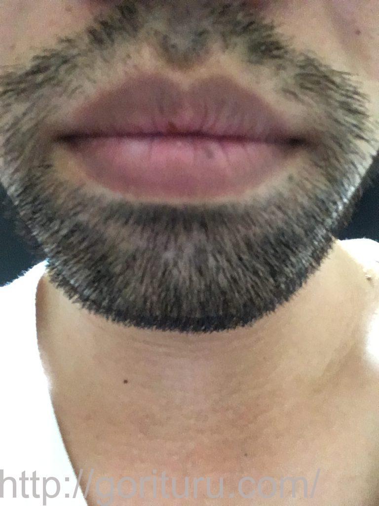 【髭脱毛2回目】レーザー照射前-10日後-正面