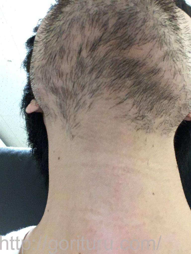 【髭脱毛2回目】レーザー照射前-10日後-首・顎下