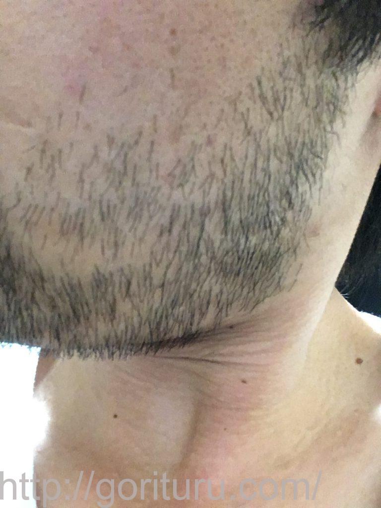 【髭脱毛2回目】レーザー照射前-10日後-左ほほ・もみあげ