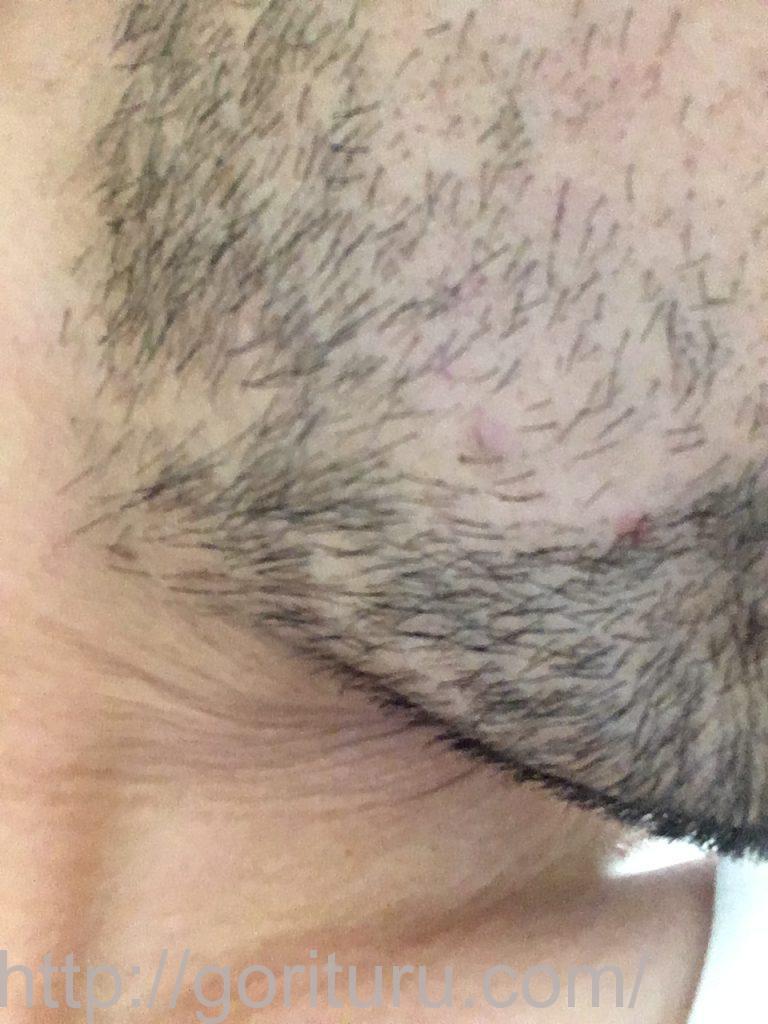 【髭脱毛2回目】レーザー照射前-10日後-右ほほ・もみあげ