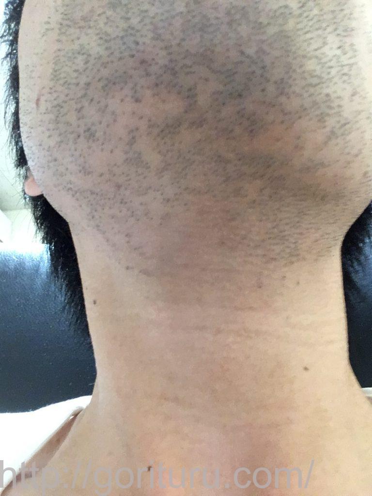 【髭脱毛2回目】レーザー照射前-1日後-首・顎下