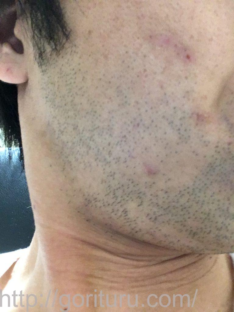 【髭脱毛2回目】レーザー照射前-1日後-右ほほ・もみあげ