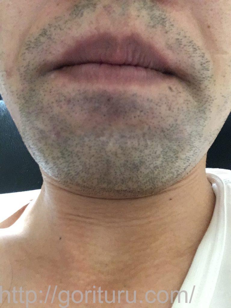 【髭脱毛2回目】レーザー照射前-1日後-正面