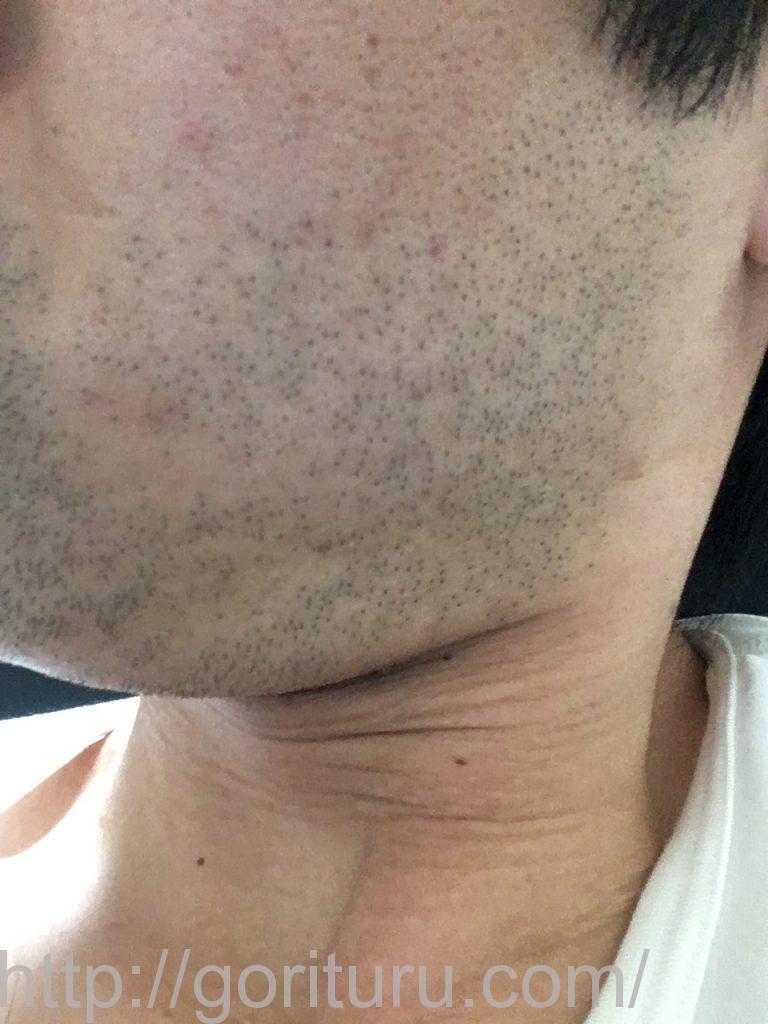 【髭脱毛2回目】レーザー照射前-1日後-左ほほ・もみあげ