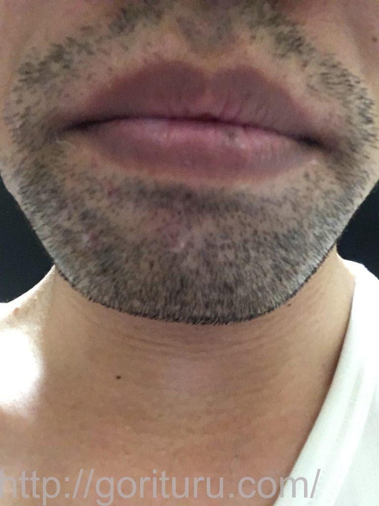 【髭脱毛2回目】レーザー照射前-3日後-正面