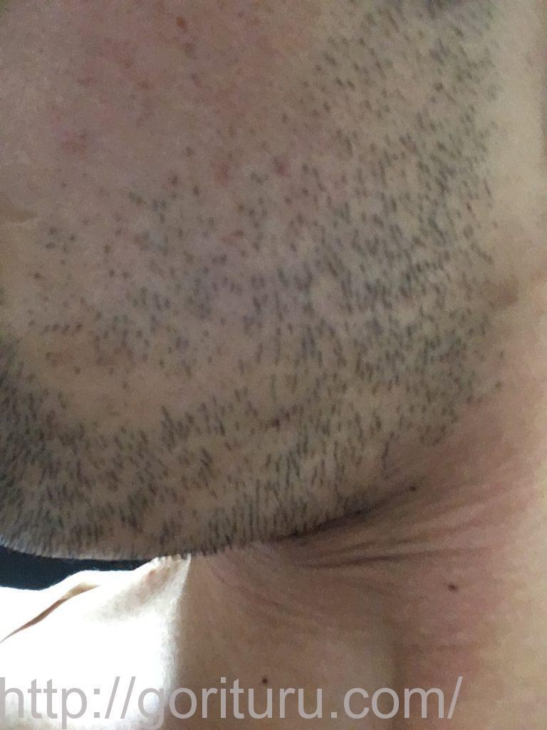 【髭脱毛2回目】レーザー照射前-3日後-左ほほ・もみあげ