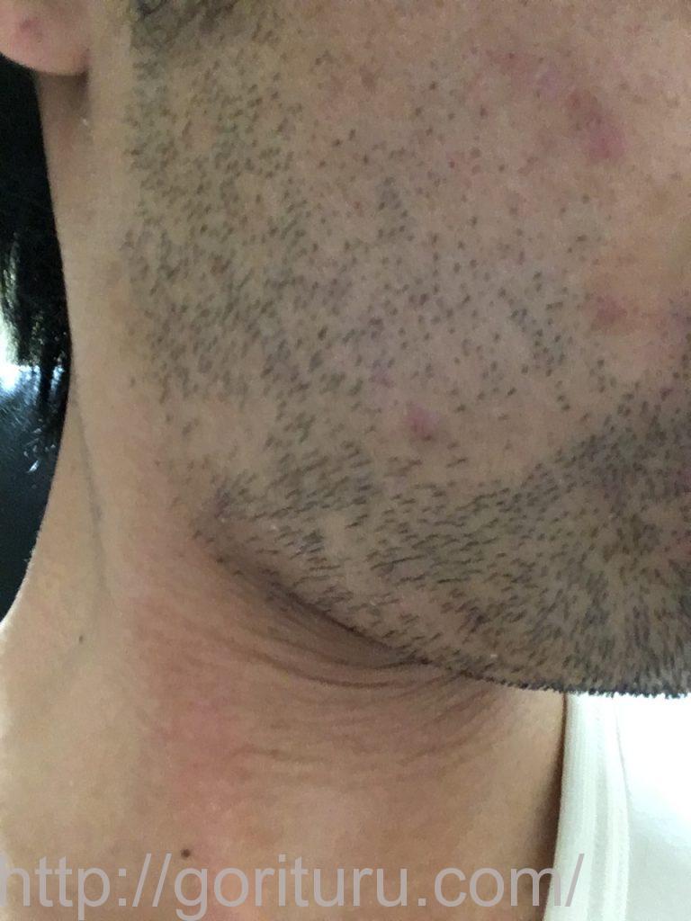 【ゴリラクリニックで髭脱毛2回目】レーザー照射前-3日後-右ほほ・もみあげ