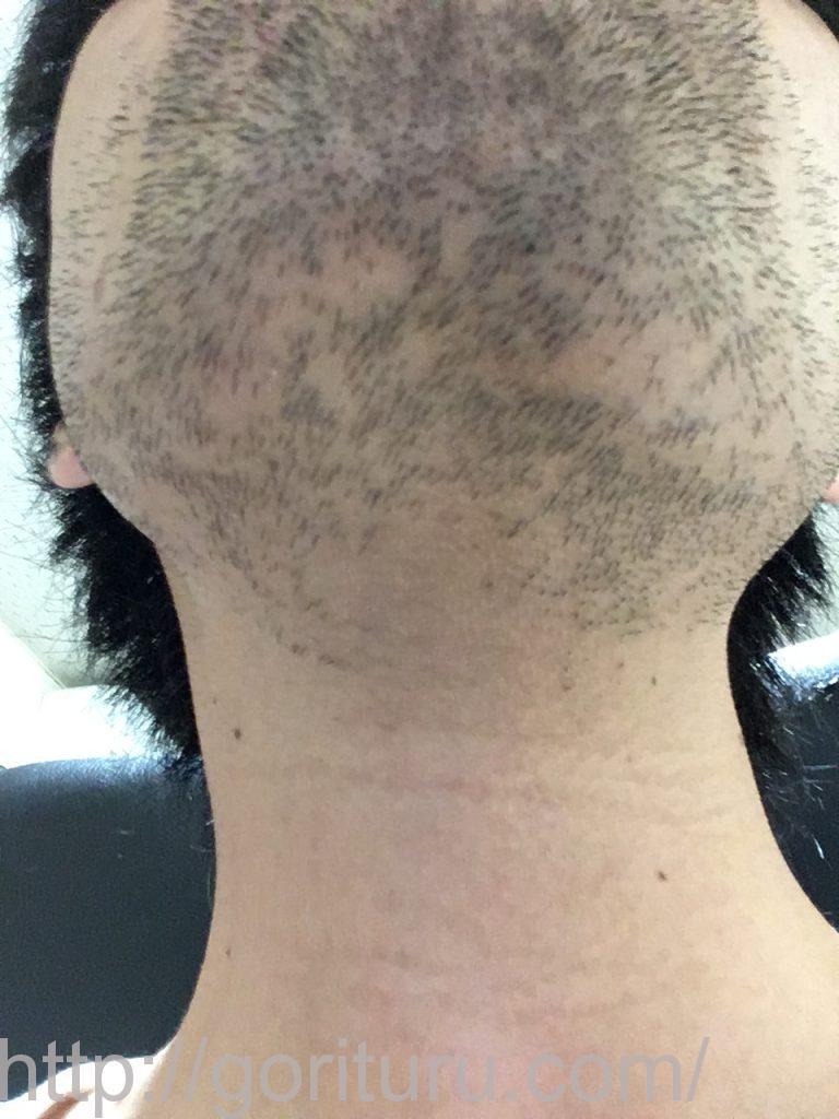 【髭脱毛2回目】レーザー照射前-3日後-首・顎下