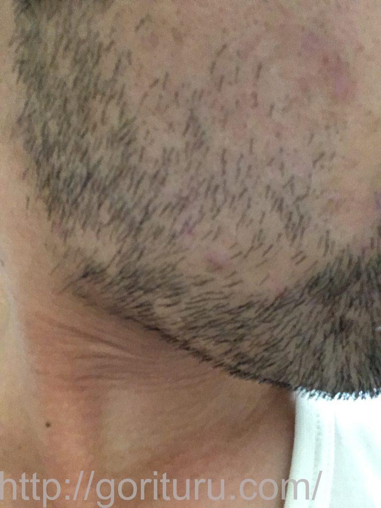 【髭脱毛2回目】レーザー照射前-7日後-右ほほ・もみあげ