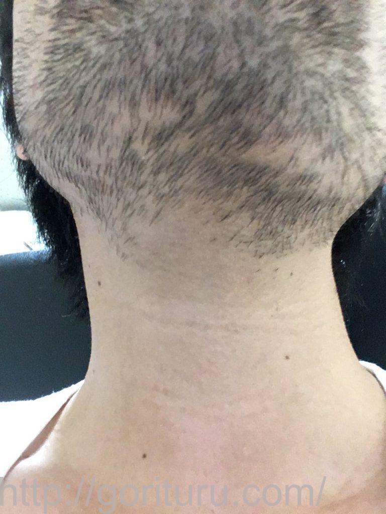 【髭脱毛2回目】レーザー照射前-7日後-首・顎下