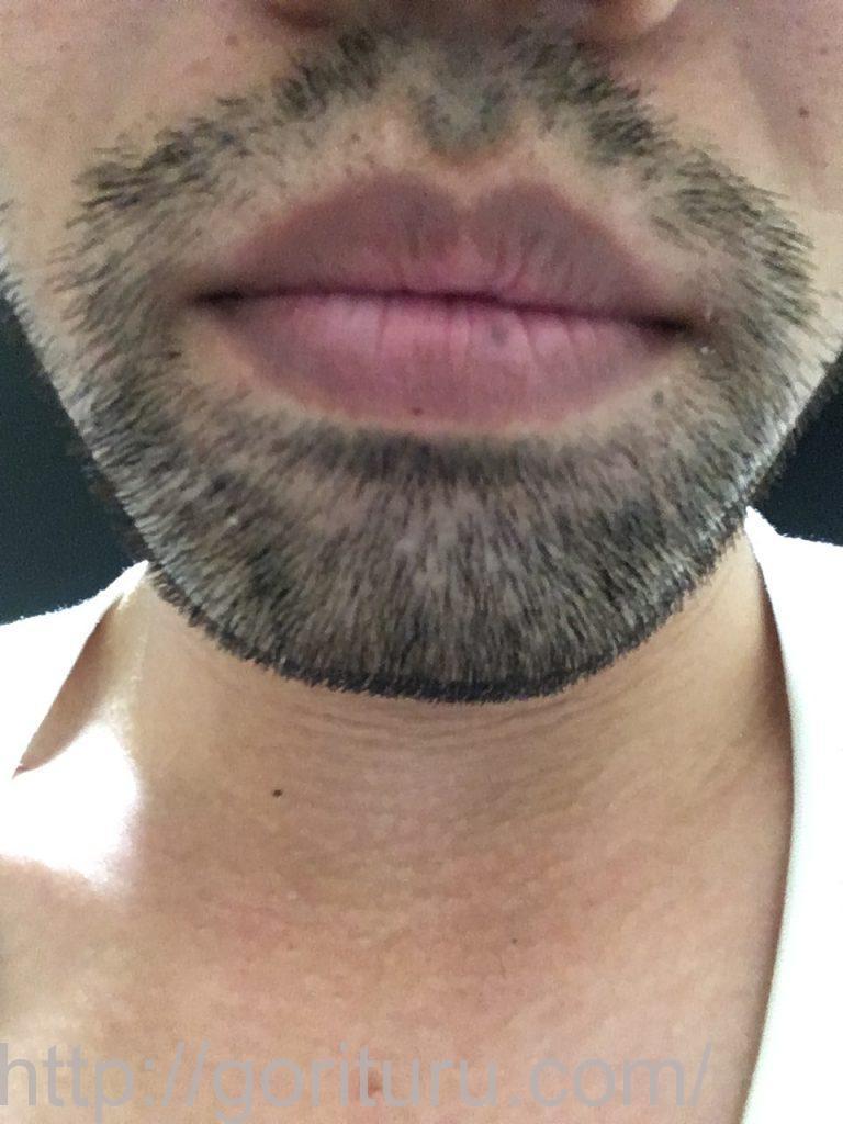 【髭脱毛2回目】レーザー照射後-7日後-正面