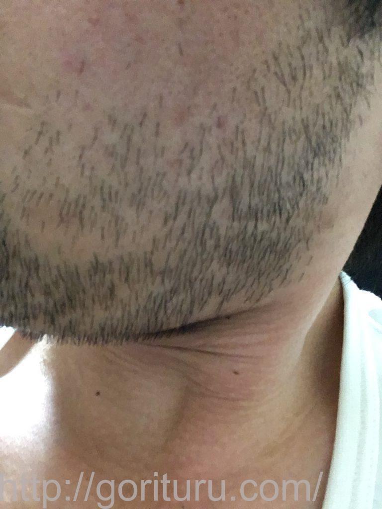【髭脱毛2回目】レーザー照射前-7日後-左ほほ・もみあげ