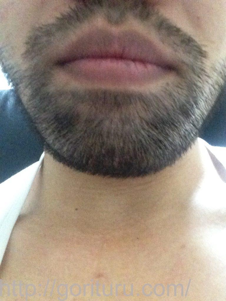 ゴリラクリニックの髭脱毛1回目前-正面