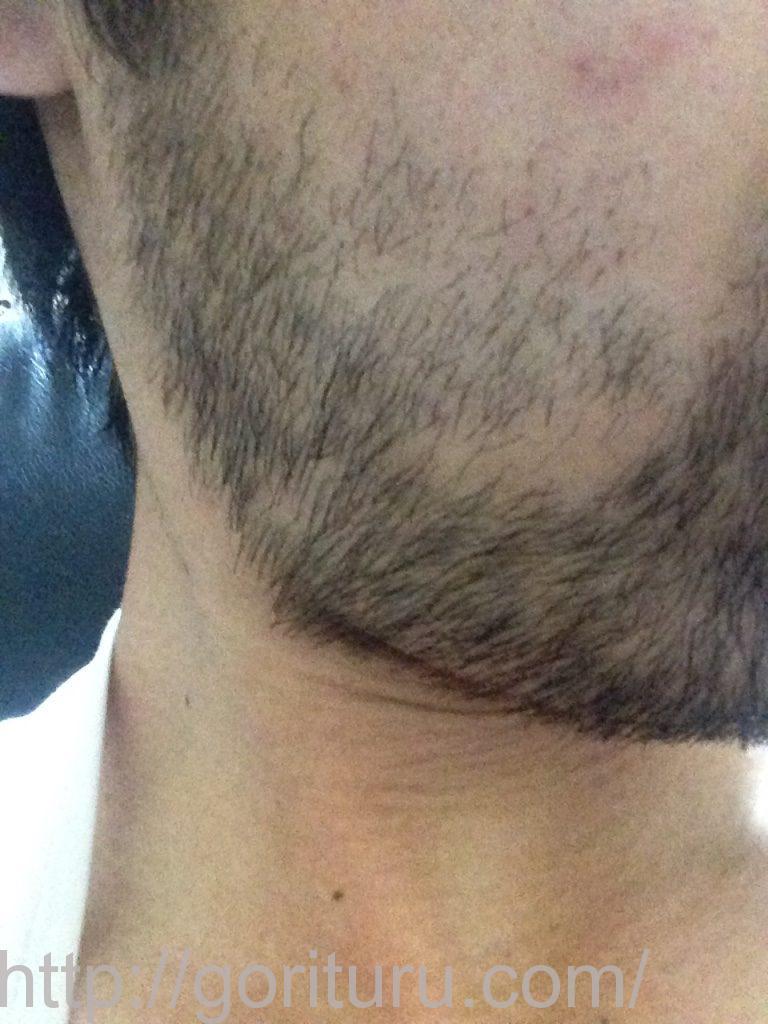 ゴリラクリニックの髭脱毛1回目前-右ほほ・もみあげ