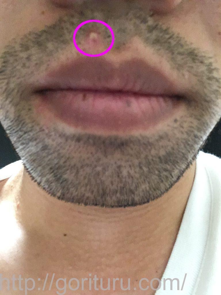 メディオスター照射後の毛嚢炎【鼻下・顎】