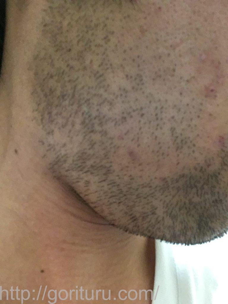 2回目の髭脱毛から3日後-右ほほ・もみあげ