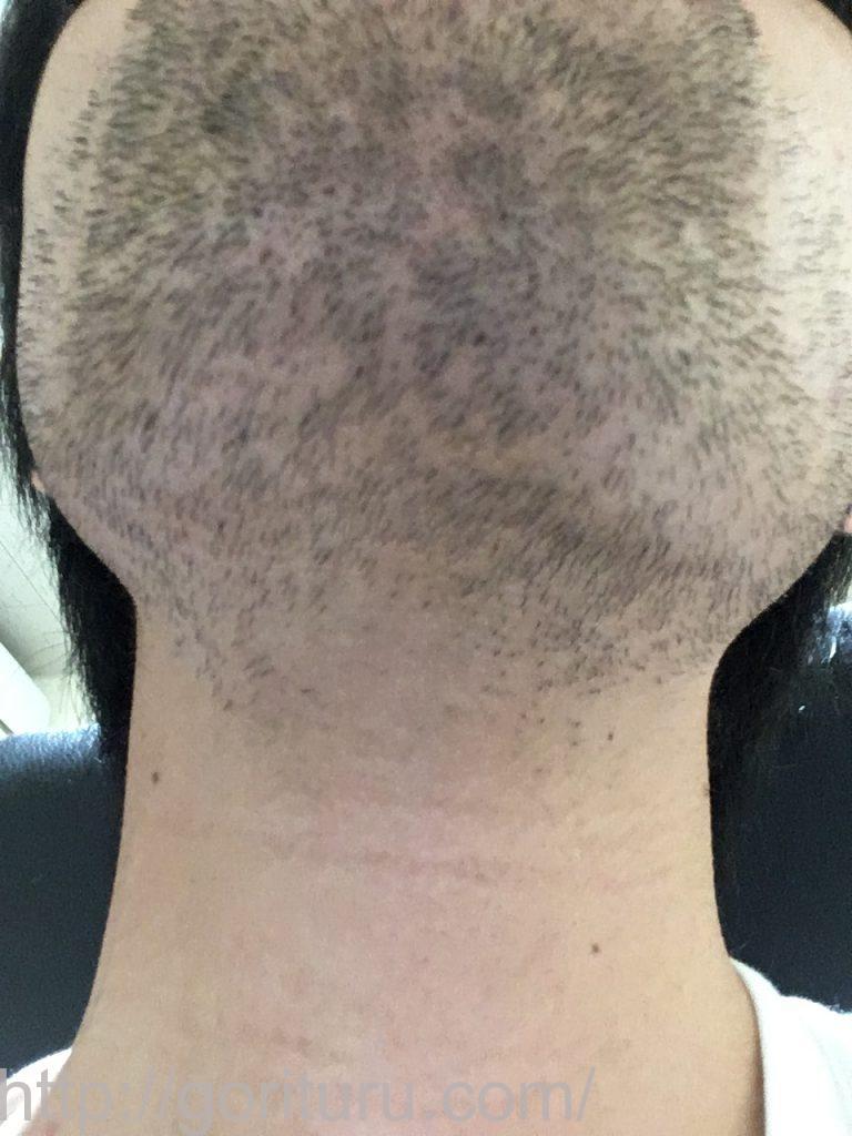 2回目の髭脱毛から3日後-アゴ下・首