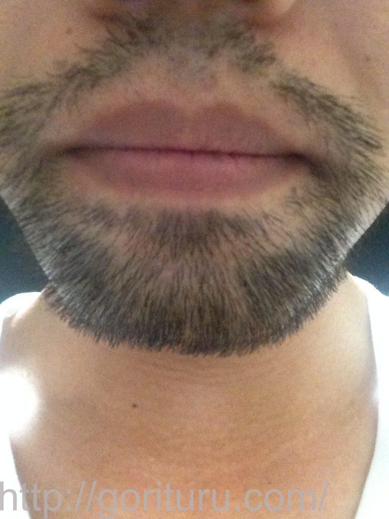 【ヒゲ脱毛2回目1ヶ月後】メディオスターのレーザー照射-10日目-鼻下・顎(旧携帯)