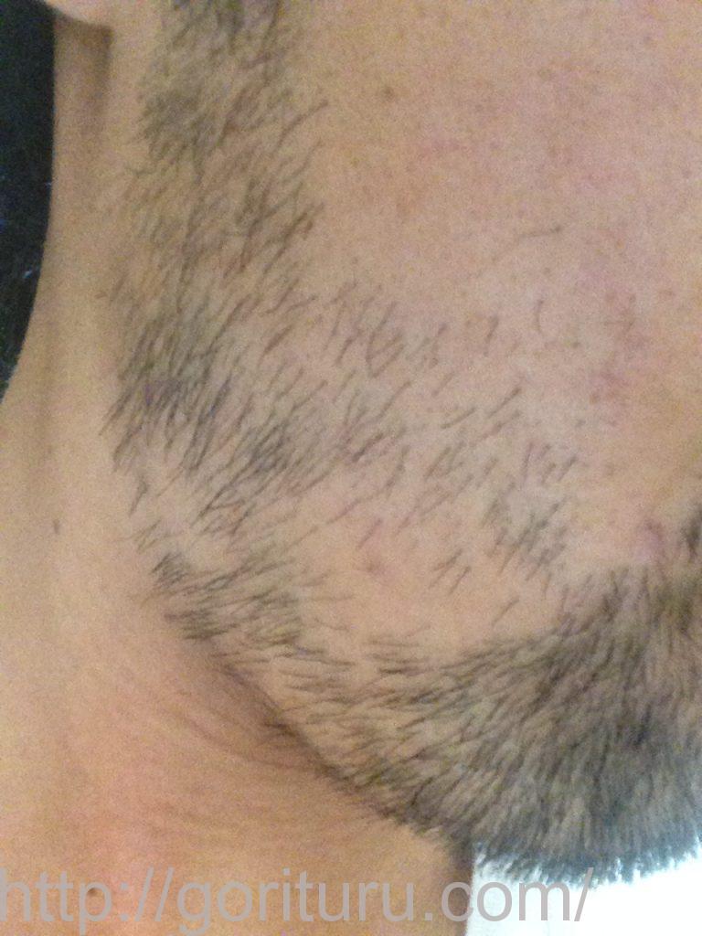【ヒゲ脱毛2回目1ヶ月後】メディオスターのレーザー照射-10日目-右ほほ・もみあげ(旧携帯)