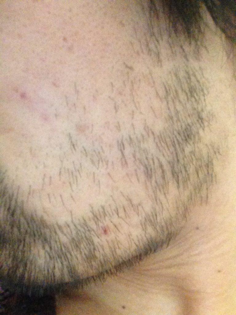 ヒゲ脱毛3回目1ヶ月と10日後(左ほほ・もみあげ)