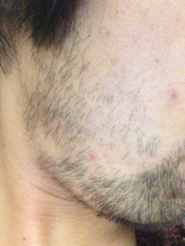 ヒゲ脱毛3回目1ヶ月と10日後(右ほほ・もみあげ)
