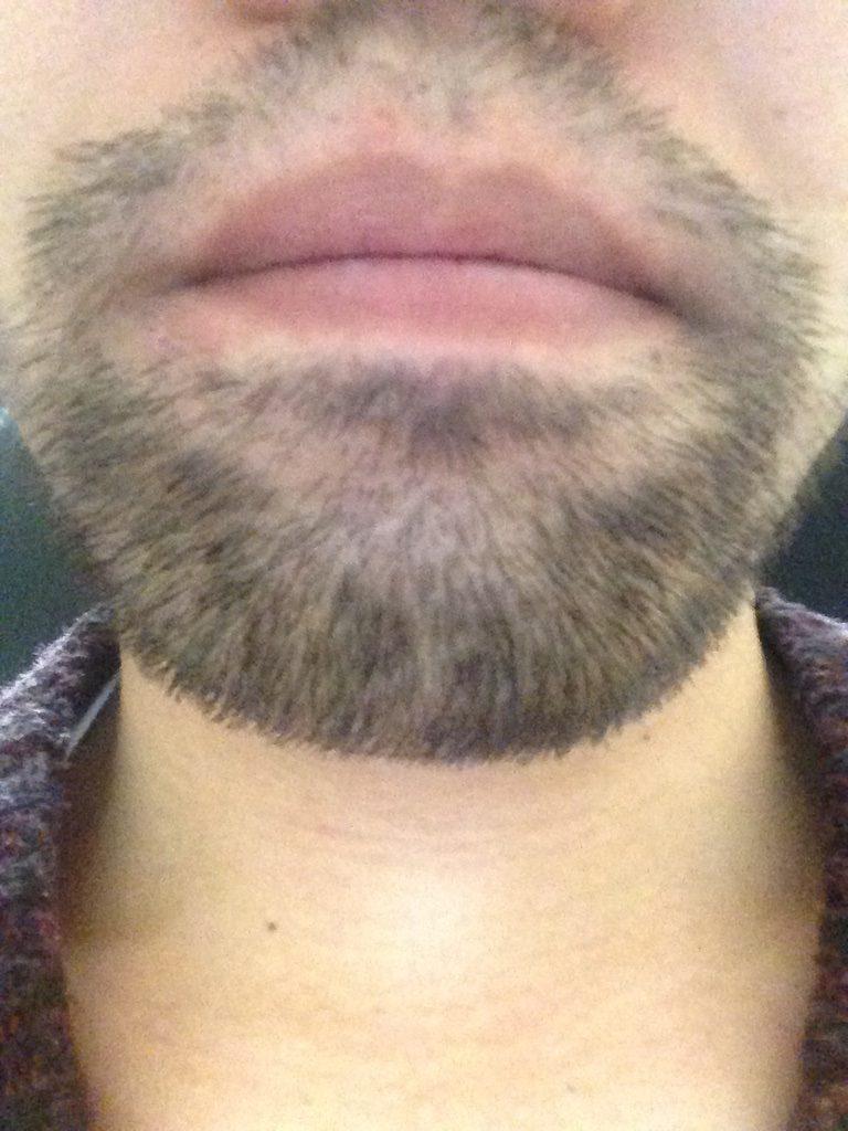 ヒゲ脱毛3回目1ヶ月と10日後(鼻下・アゴ)