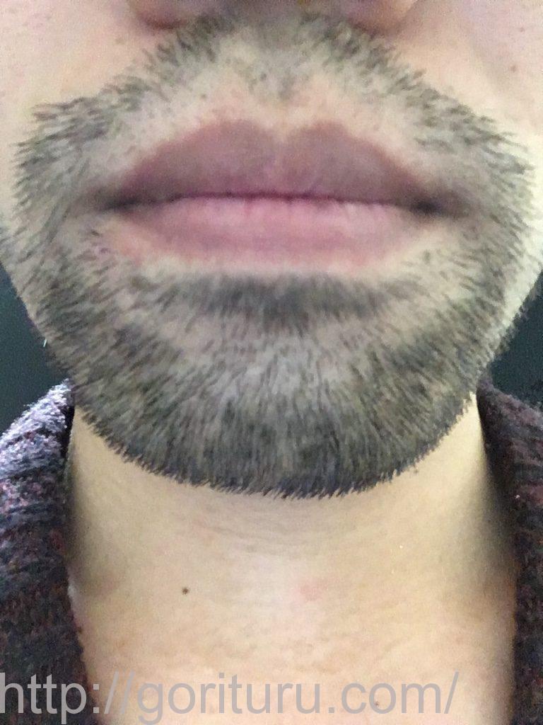 ヒゲ脱毛3回目1ヶ月と1週間後(鼻下・アゴ)
