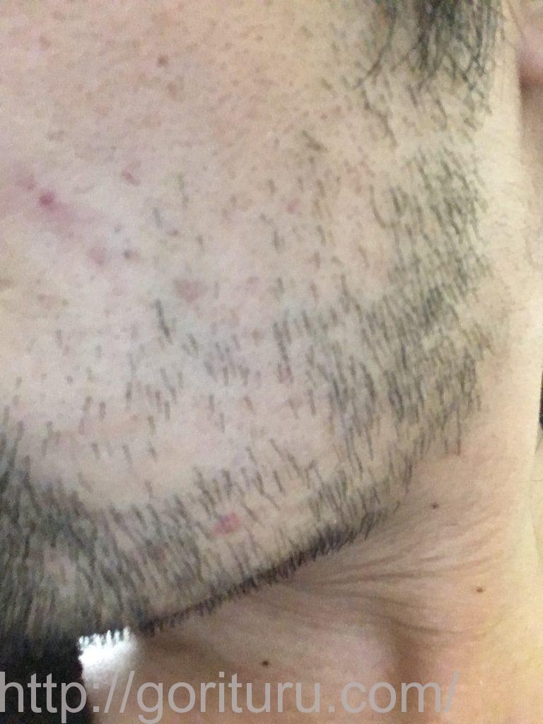 ヒゲ脱毛3回目1ヶ月と1週間後(左ほほ・もみあげ)