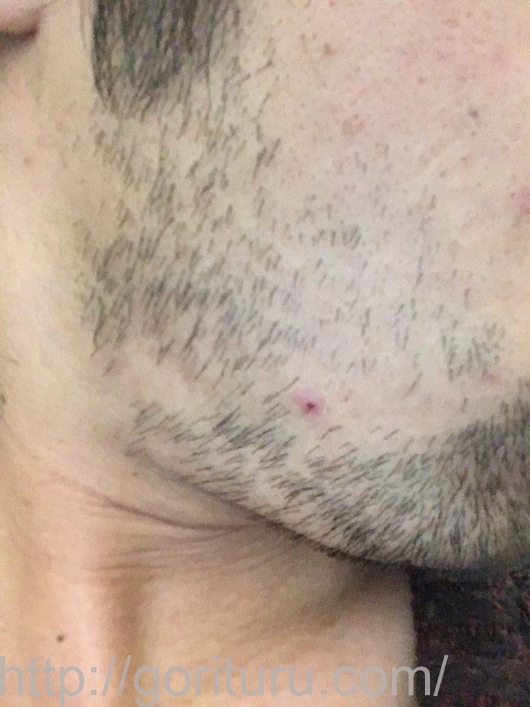 ヒゲ脱毛3回目1ヶ月と1週間後(右ほほ・もみあげ)
