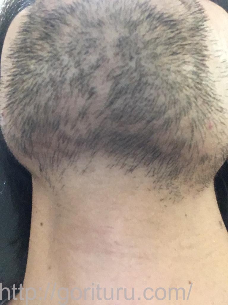 ヒゲ脱毛3回目1ヶ月と1週間後(アゴ下・首)