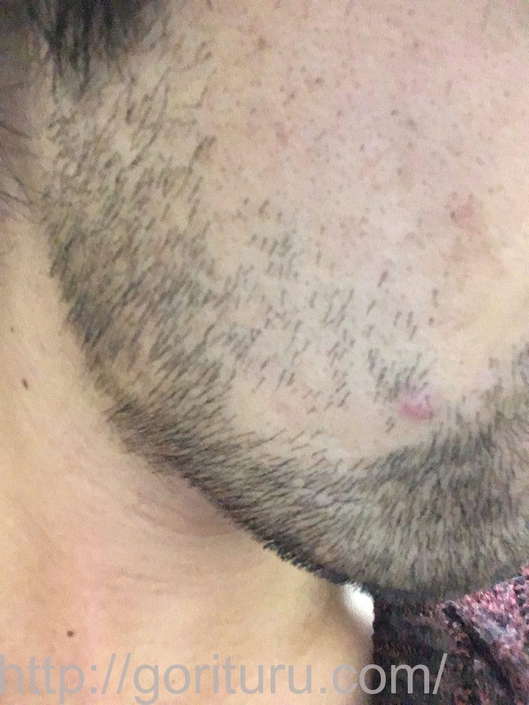 ヒゲ脱毛3回目7日後(右ほほ・もみあげ)