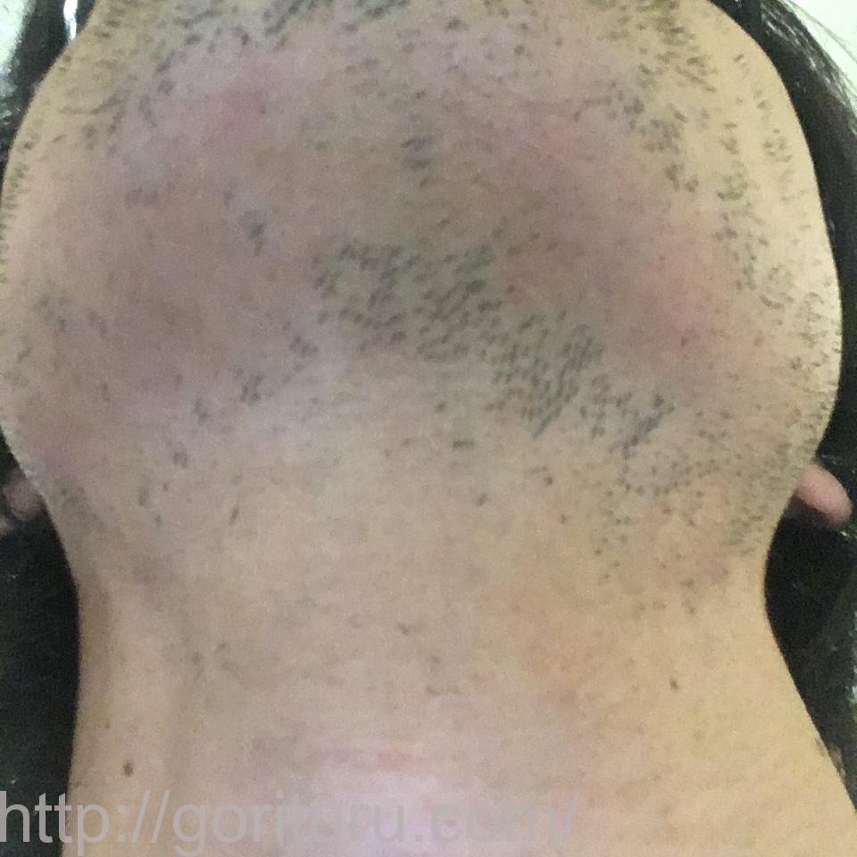 髭の永久脱毛4回目のビフォーアフター(医療レーザー照射24日後|首・アゴ下)の変化・経過写真