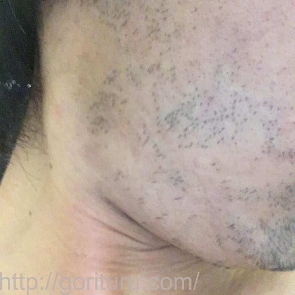 髭の永久脱毛4回目のビフォーアフター(医療レーザー照射24日後|右ほほ・もみあげ)の変化・経過写真