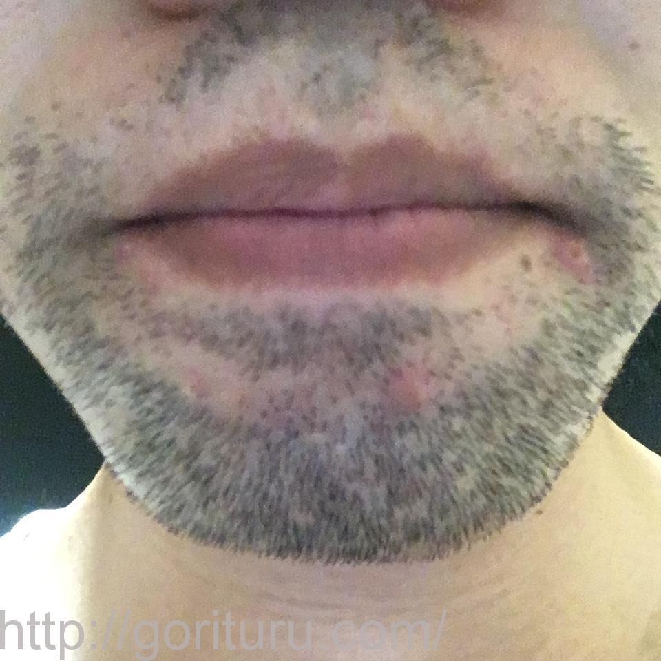 髭の医療脱毛4回目の経過写真(鼻下・アゴ)