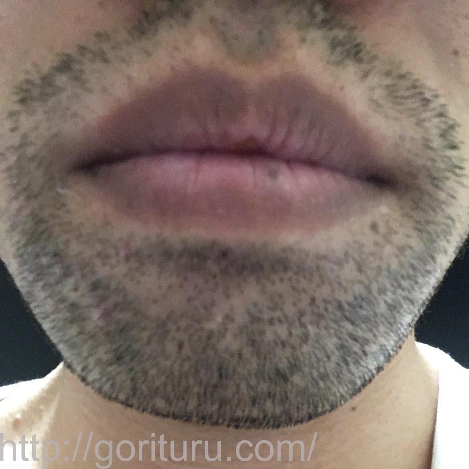 髭の医療脱毛1回目の経過写真(鼻下・アゴ)
