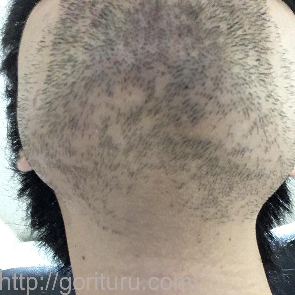 髭の医療脱毛1回目の経過写真(首・アゴ下)