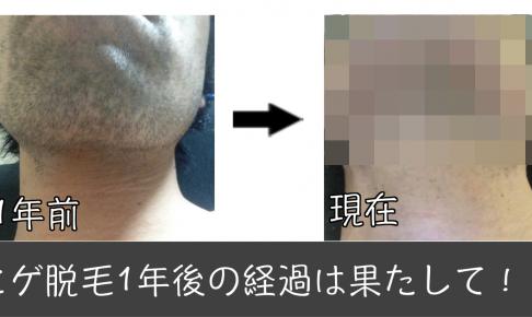 髭脱毛 1年,髭脱毛 ビフォーアフター